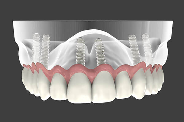 implant supported denture graphic